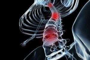spinal-cord-injuries1-300x200